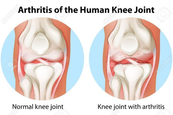 Arthritis Knee Pain - 3 Ways To Improve Knee Joint Mobility