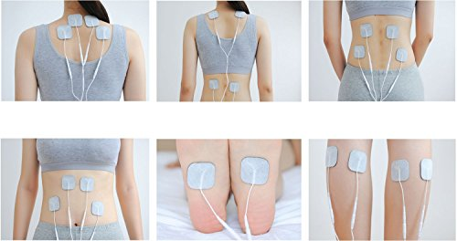 How Tens Machines Facilitate Heal Quicker - Electrotherapy Used Post Operatively