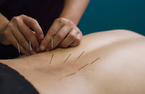 Getting To The Purpose Of Pain With Dry-Needling Therapy