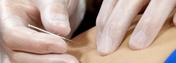 Learning To Like Needle Therapies For Fibromyalgia Trigger Purpose Treatment