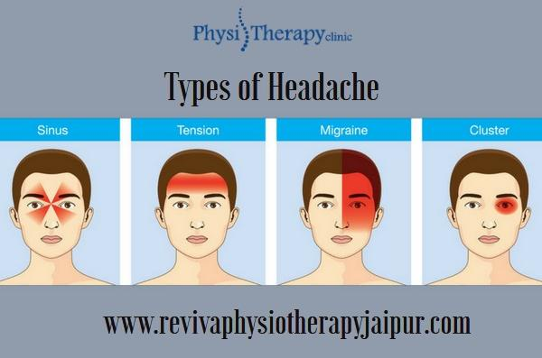 Difference between Migraine Headache and Tension Headache